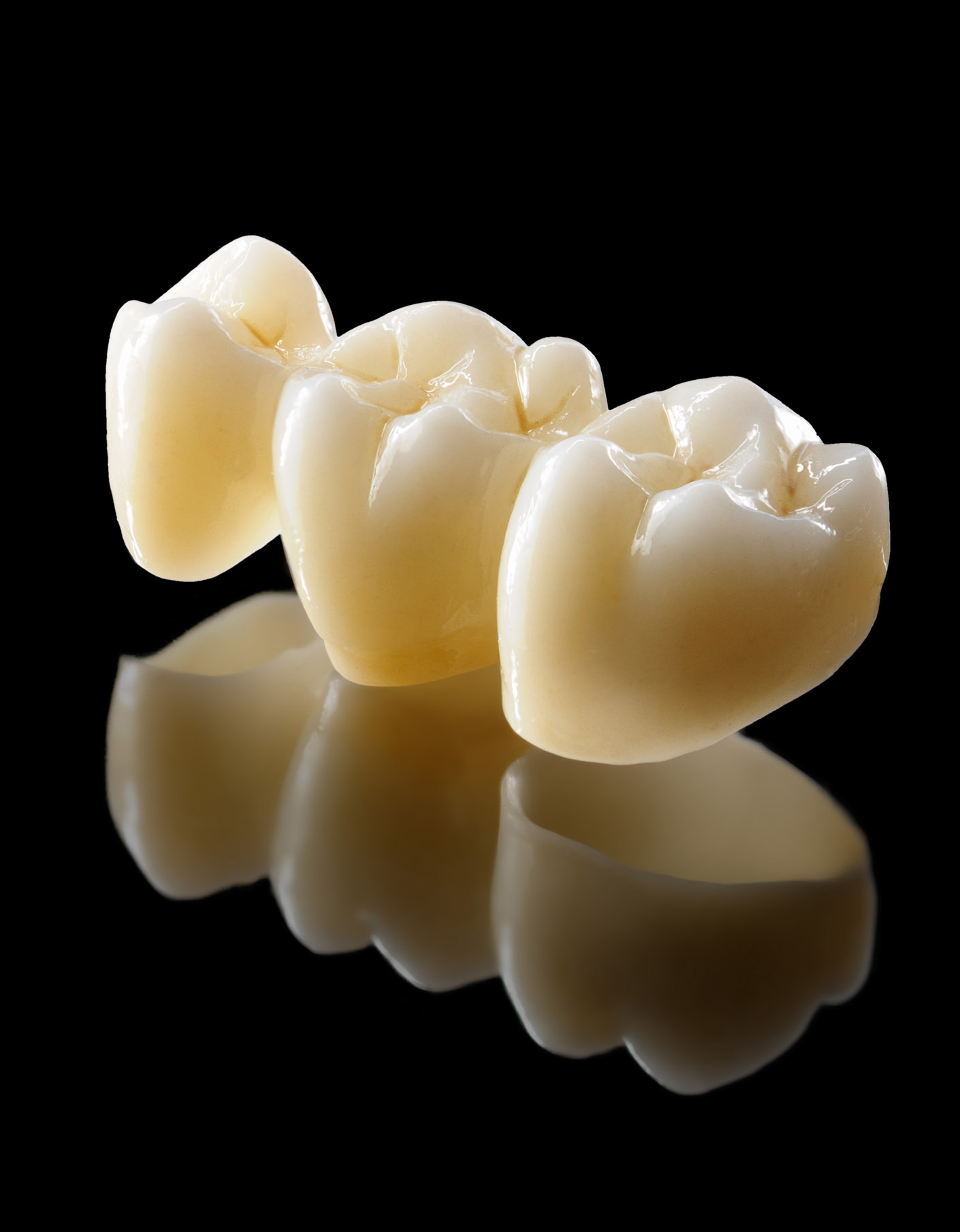 portfolio_dental_bridges_1410x1810