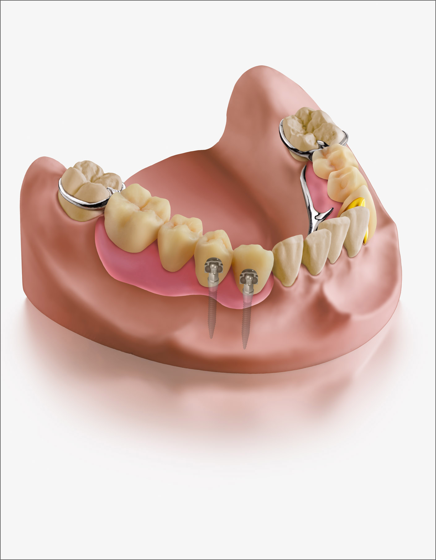 portfolio_dental_illustration_1410x1810
