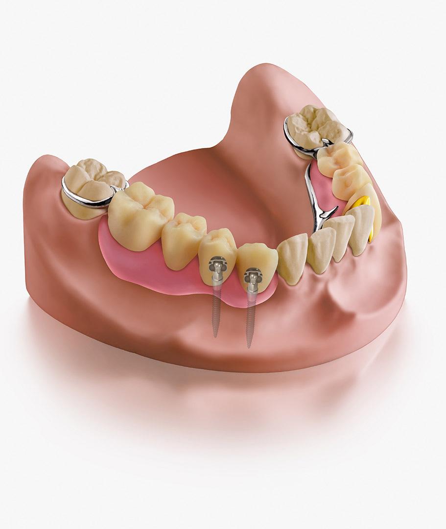 00_dental_illus_04