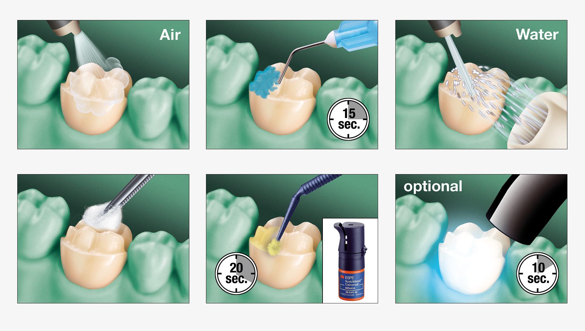 01_dental_illus