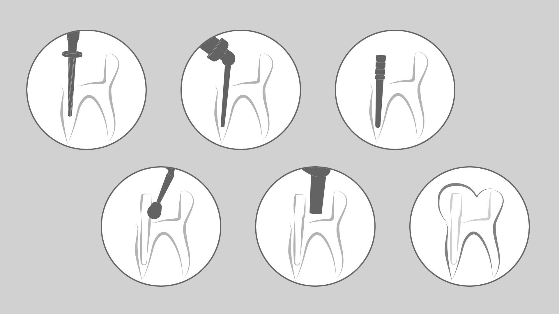 06_dental_illus