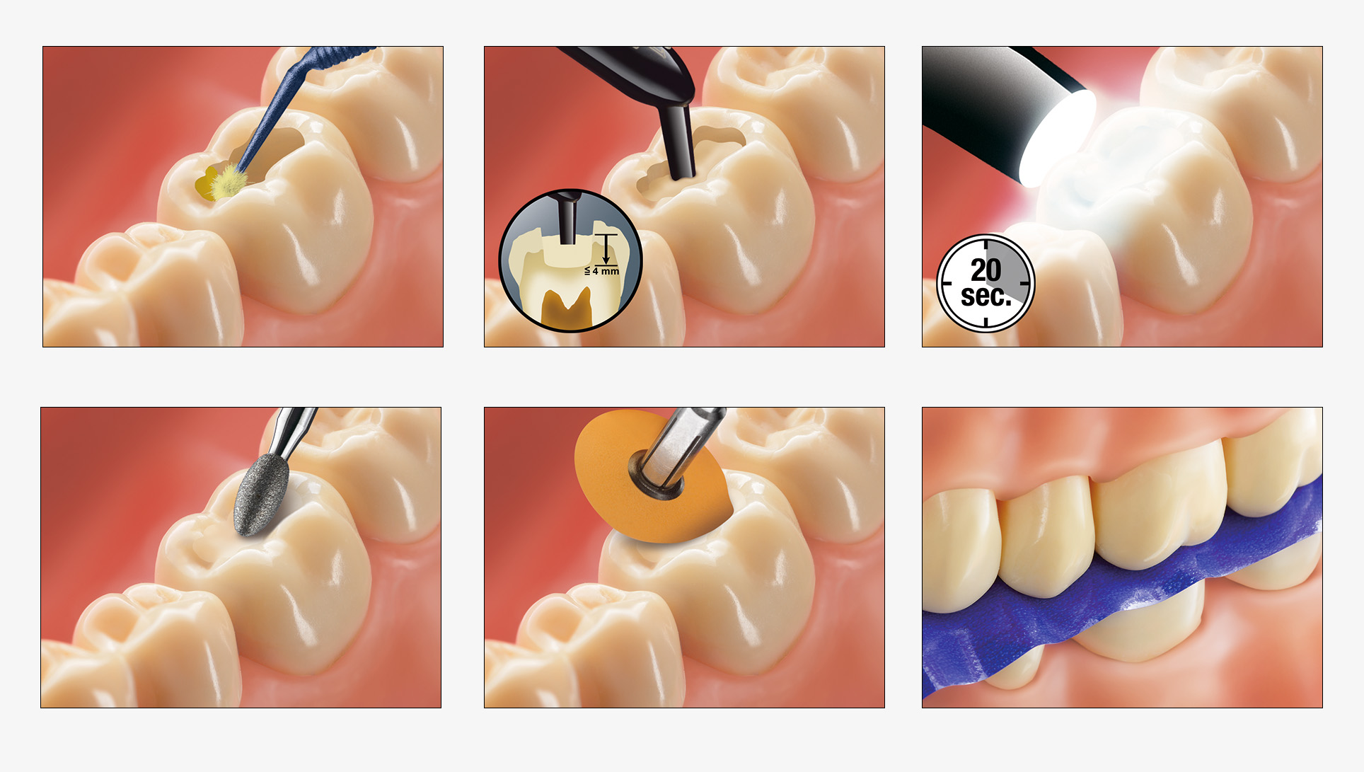 09_dental_illus