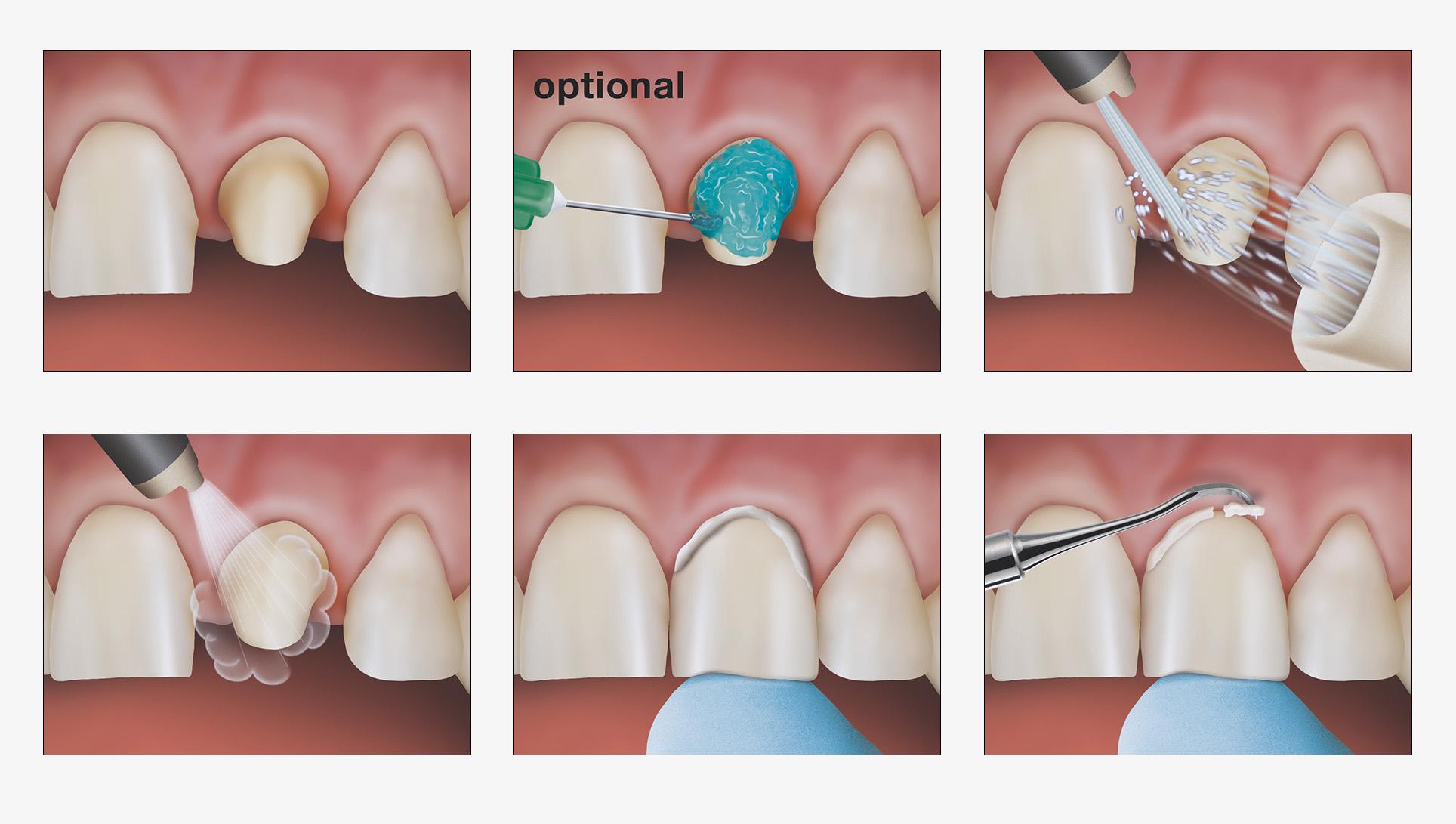 12_dental_illus