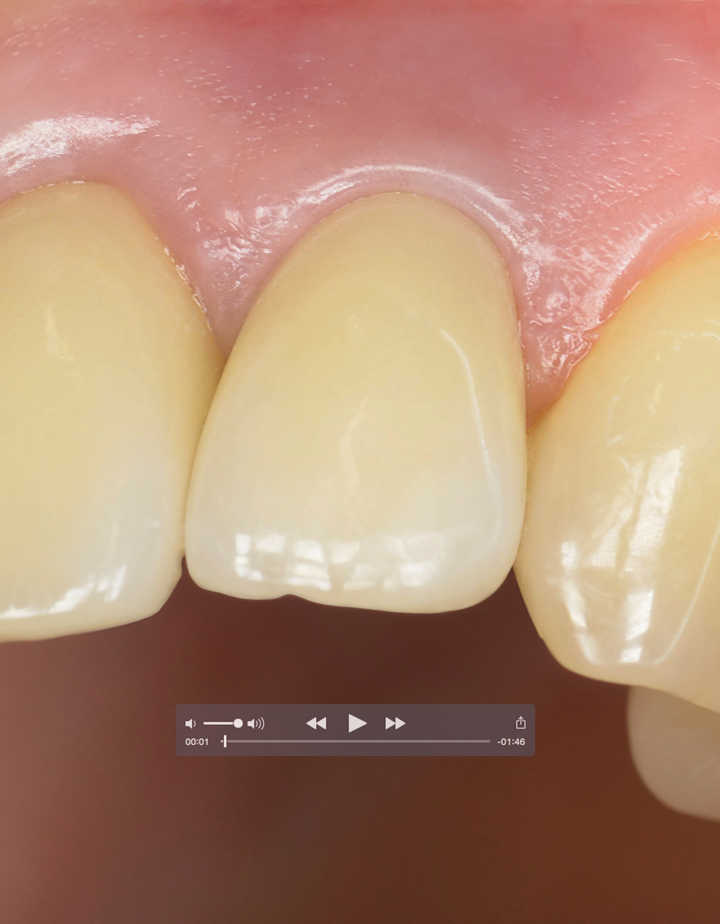 portfolio_dental_clinical_video_1410x1810