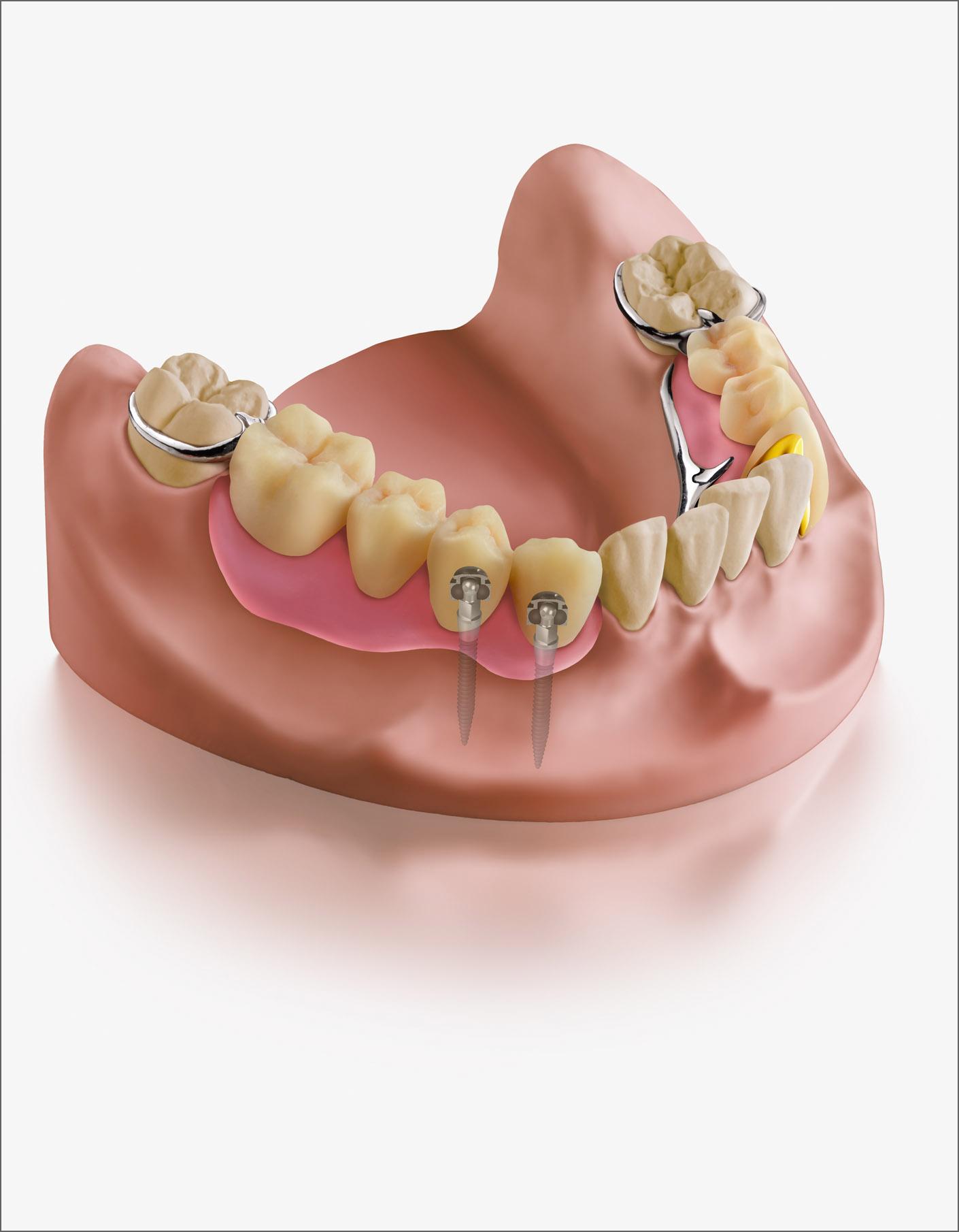 portfolio_dental_illustration_1410x1810