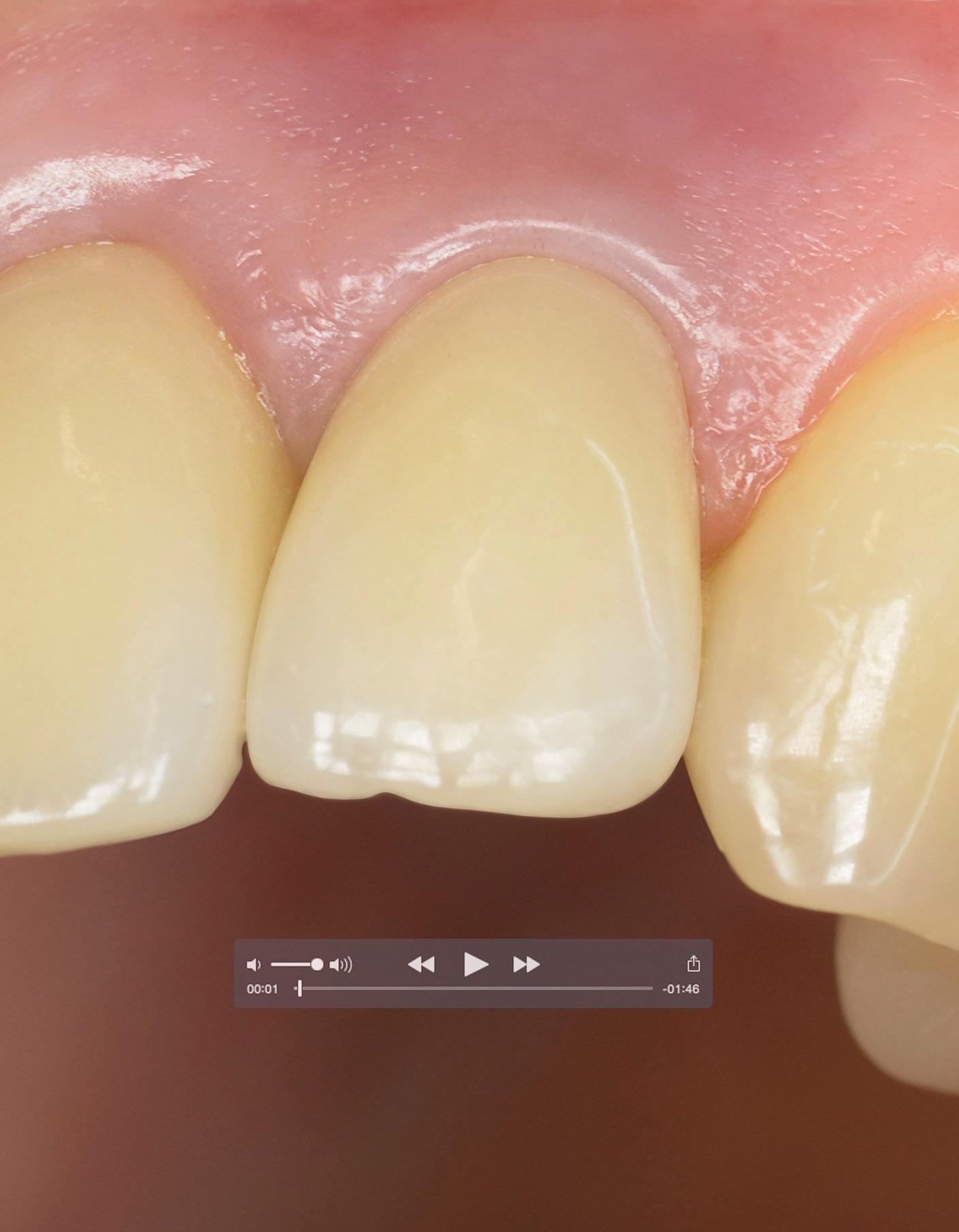 portfolio_dental_clinical_video_1410x1810